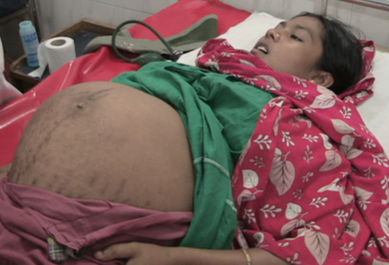 Giving Birth in Bangladesh